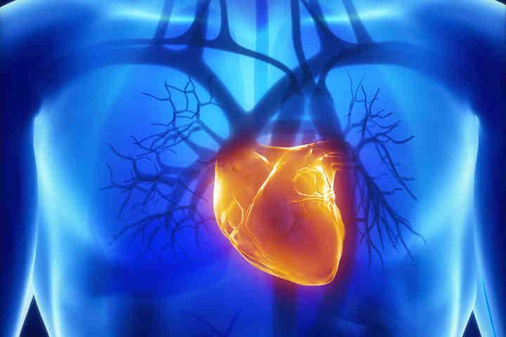 Monzino, individuare pazienti a rischio di infarto