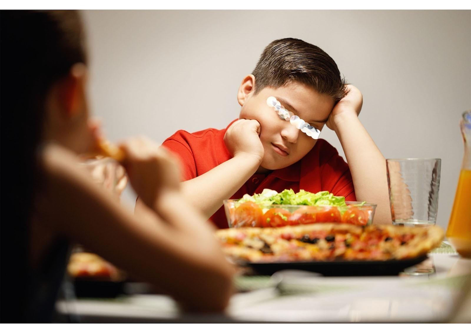 Obesità infantile aumenta il rischio di ispessimento delle arteria carotide da adulti