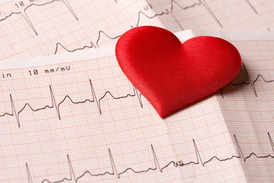 Tachicardia, un circuito elettrico riparabile