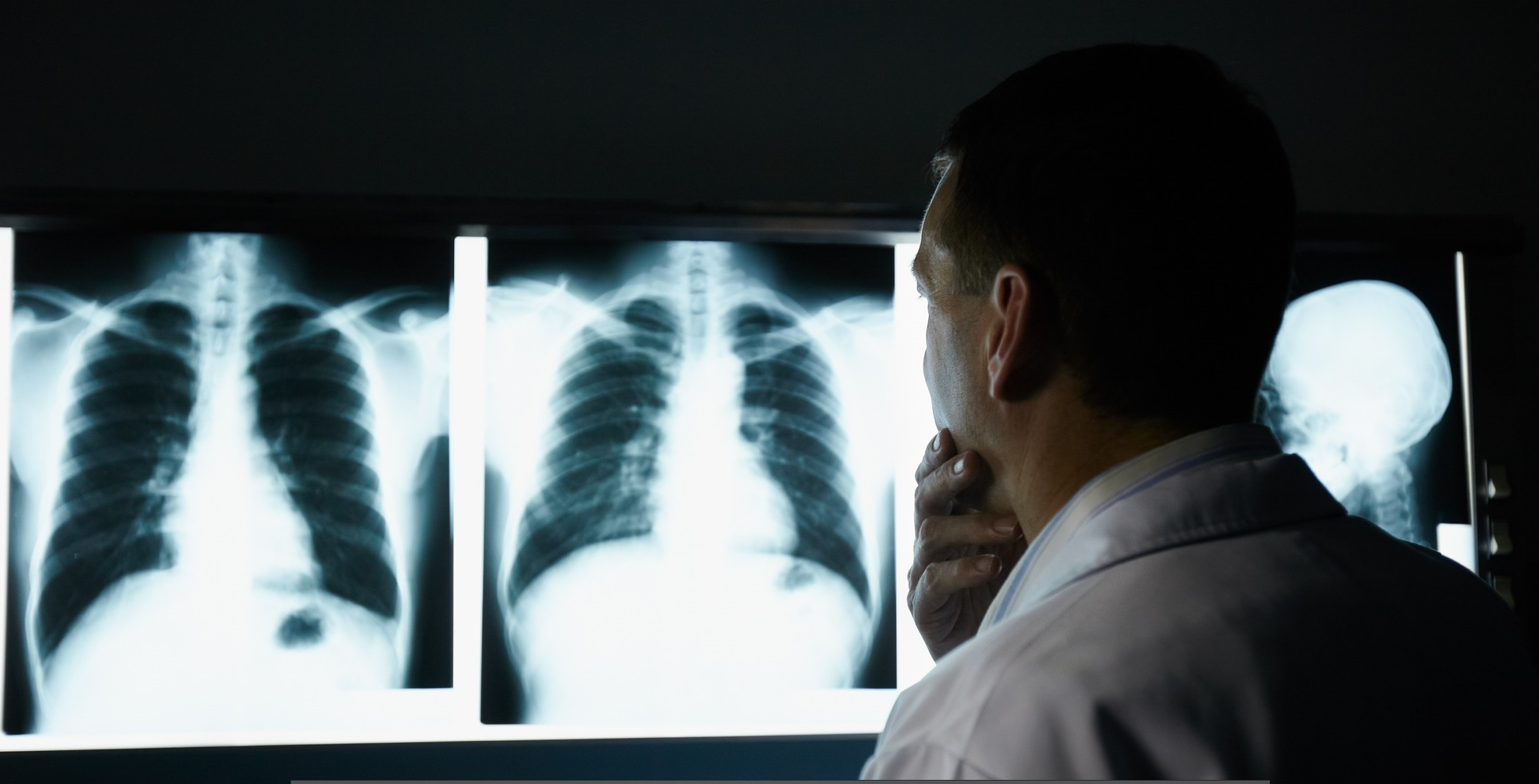 All'ospedale di Bergamo un trapianto polmonare che sa di speranza per tutti