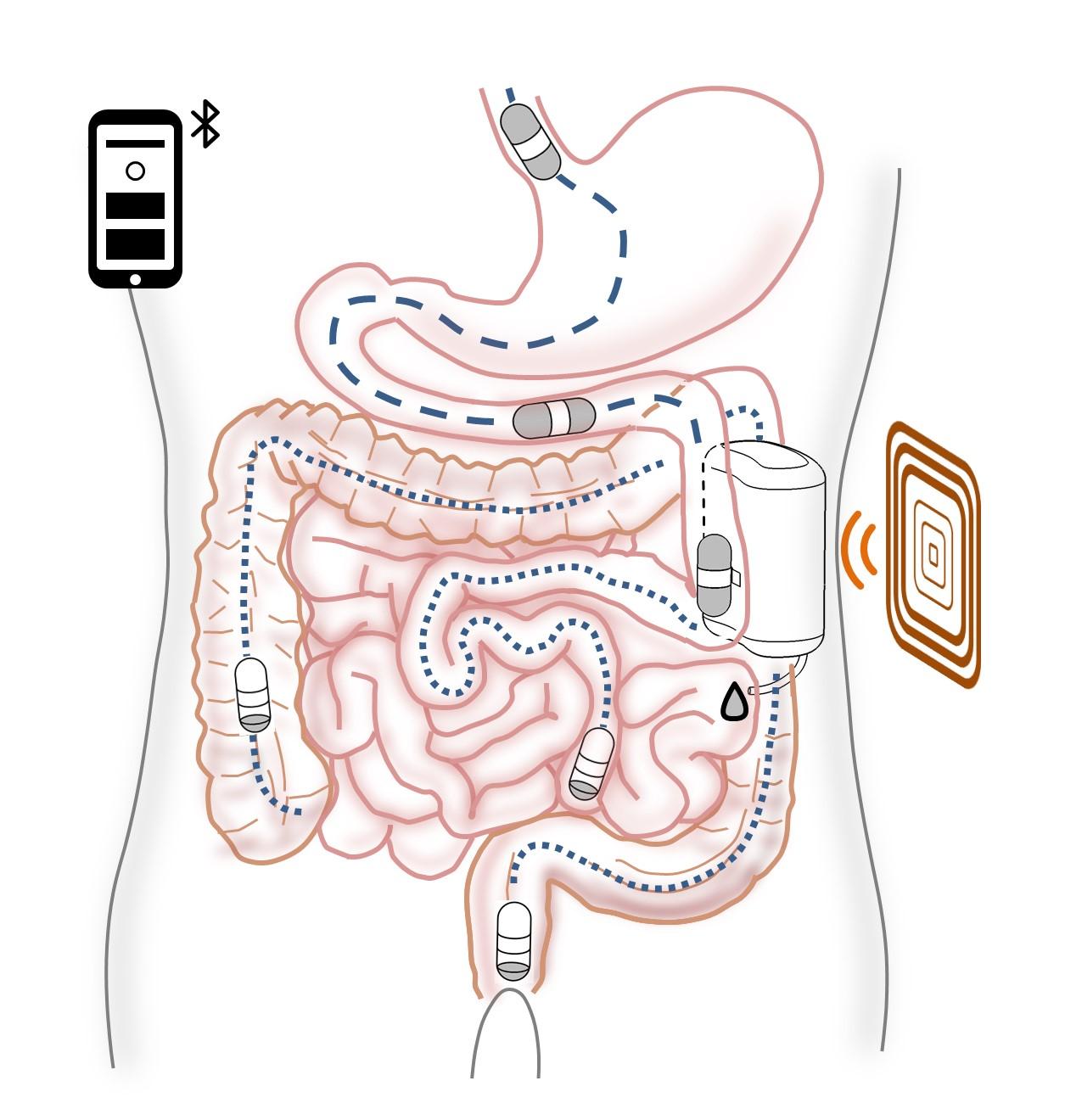 Pompa di insulina autoricaricabile con una pillola